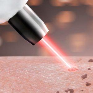 Eletroterapia Dermoestetica e em Laserterapia e LED